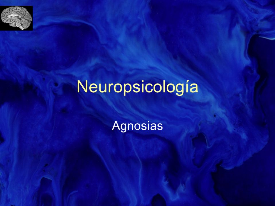 Neuropsicología Agnosias