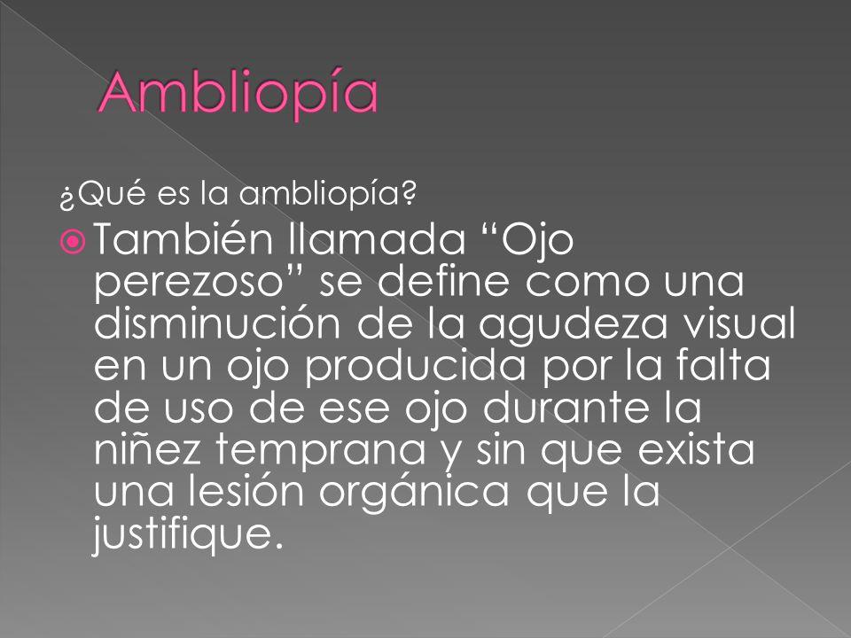 Ambliopía ¿Qué es la ambliopía