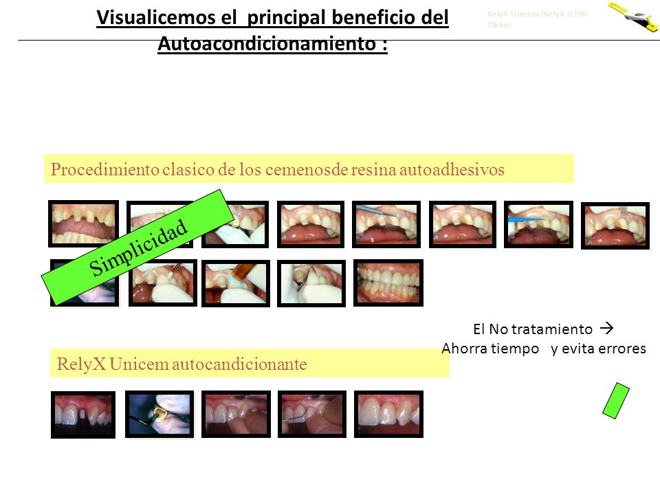 Visualicemos el principal beneficio del Autoacondicionamiento :