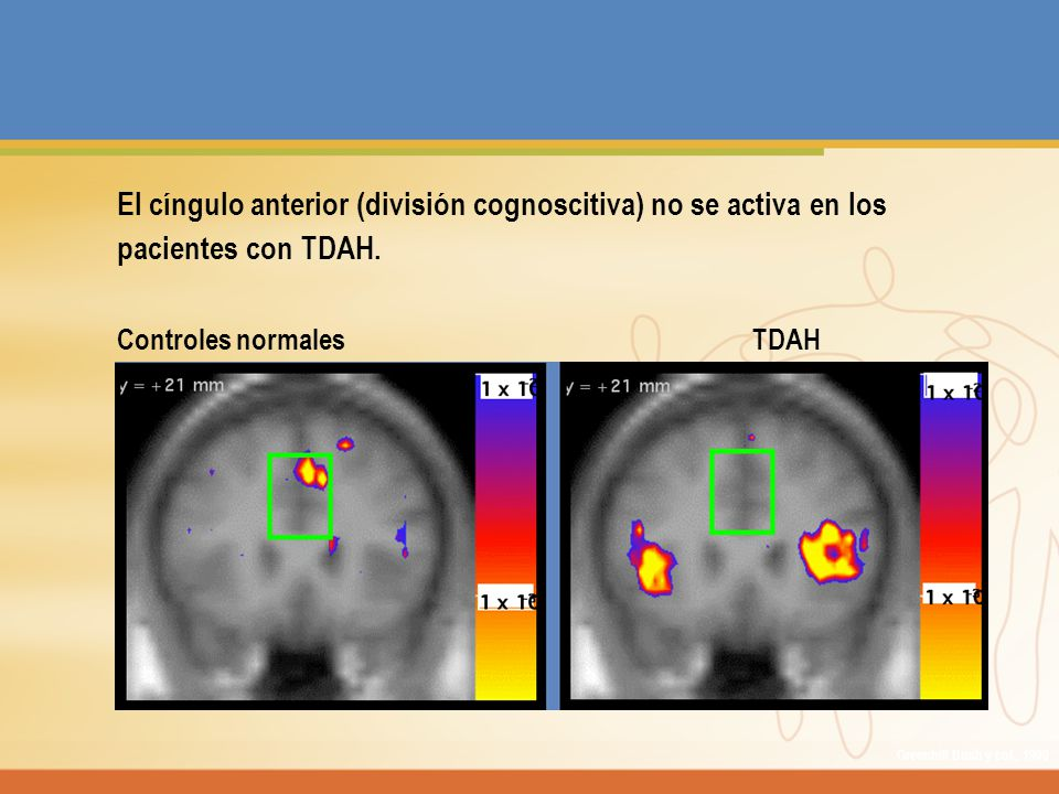 El cíngulo anterior (división cognoscitiva) no se activa en los