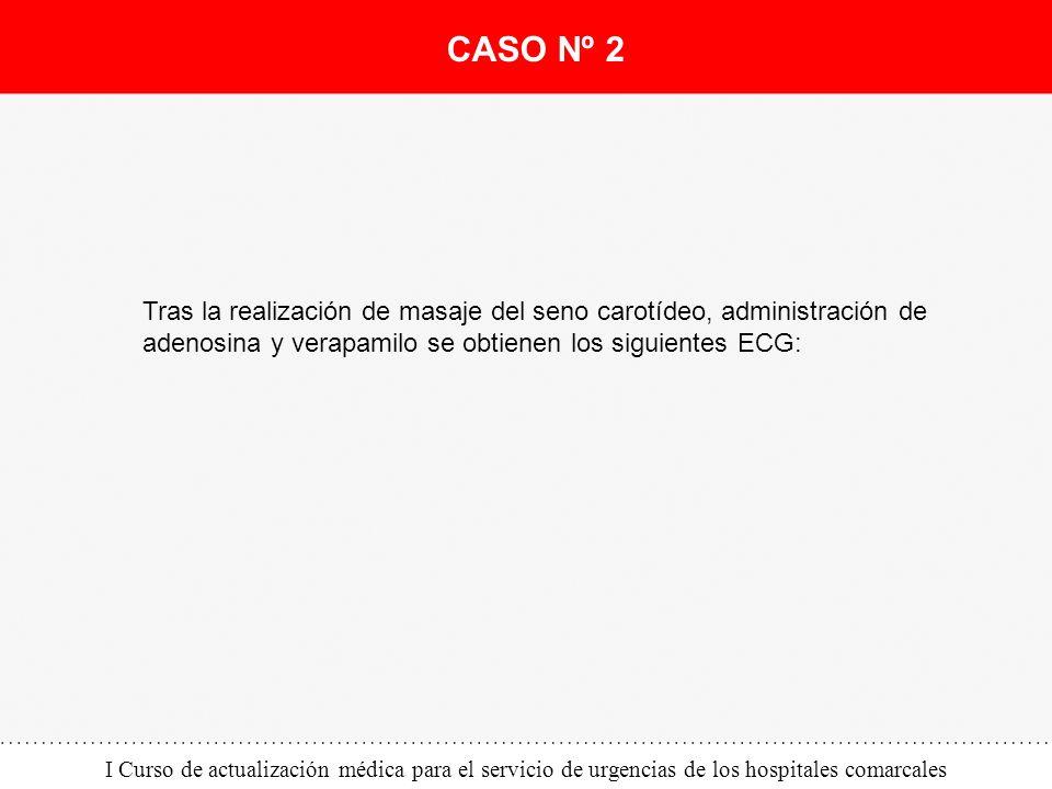 CASO Nº 2 Tras la realización de masaje del seno carotídeo, administración de adenosina y verapamilo se obtienen los siguientes ECG: