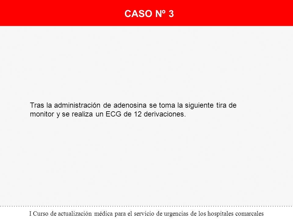 CASO Nº 3 Tras la administración de adenosina se toma la siguiente tira de monitor y se realiza un ECG de 12 derivaciones.