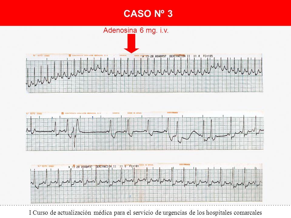 CASO Nº 3 Adenosina 6 mg. i.v.