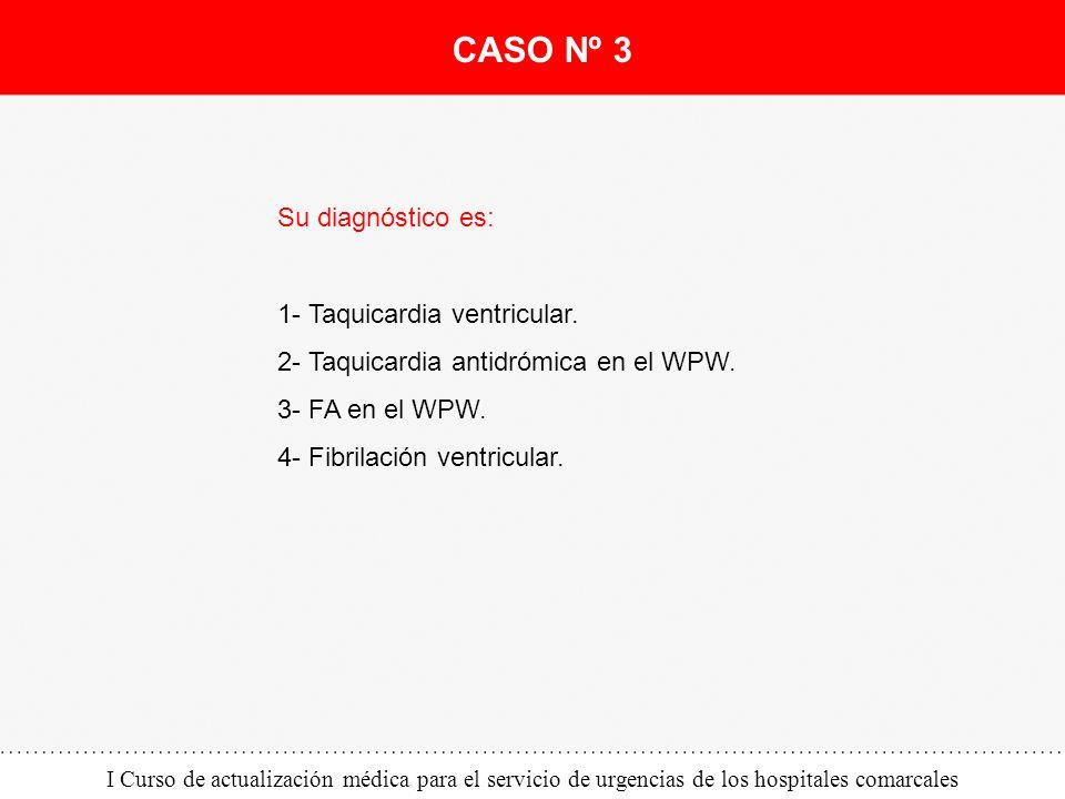 CASO Nº 3 Su diagnóstico es: 1- Taquicardia ventricular.
