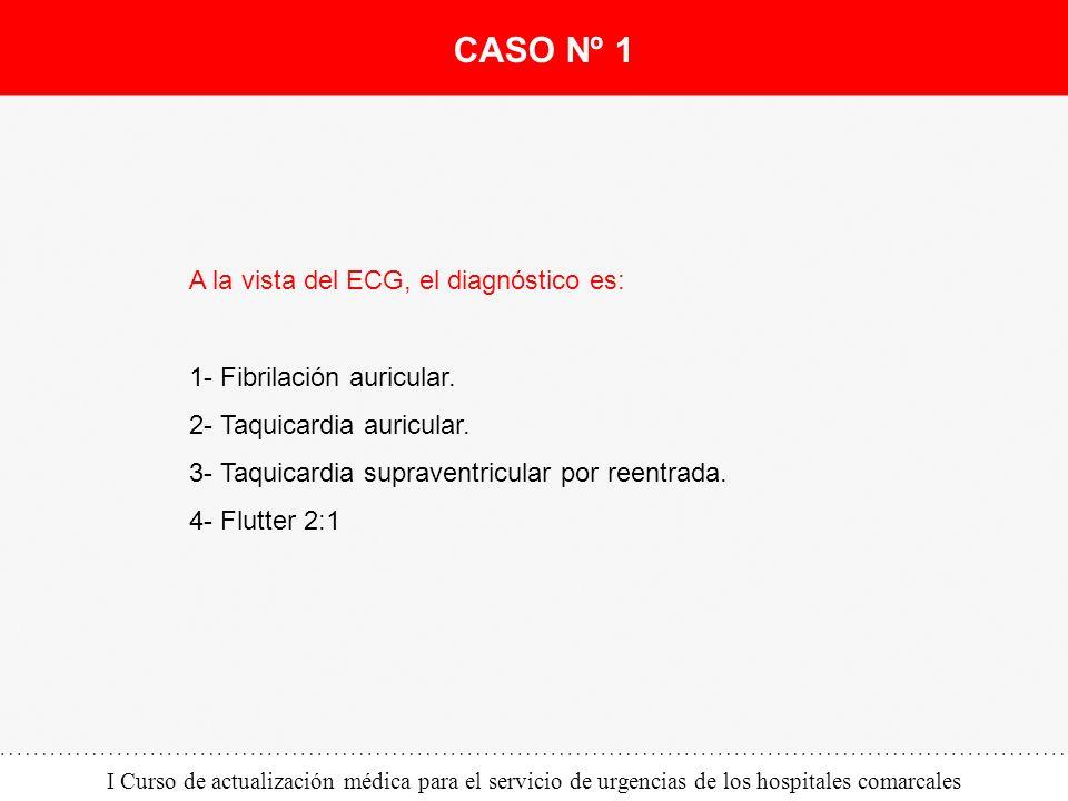 CASO Nº 1 A la vista del ECG, el diagnóstico es: