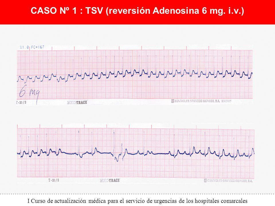 CASO Nº 1 : TSV (reversión Adenosina 6 mg. i.v.)