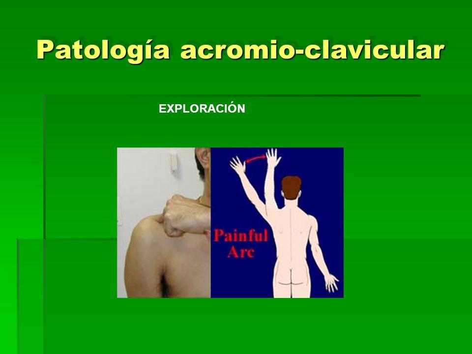 Patología acromio-clavicular