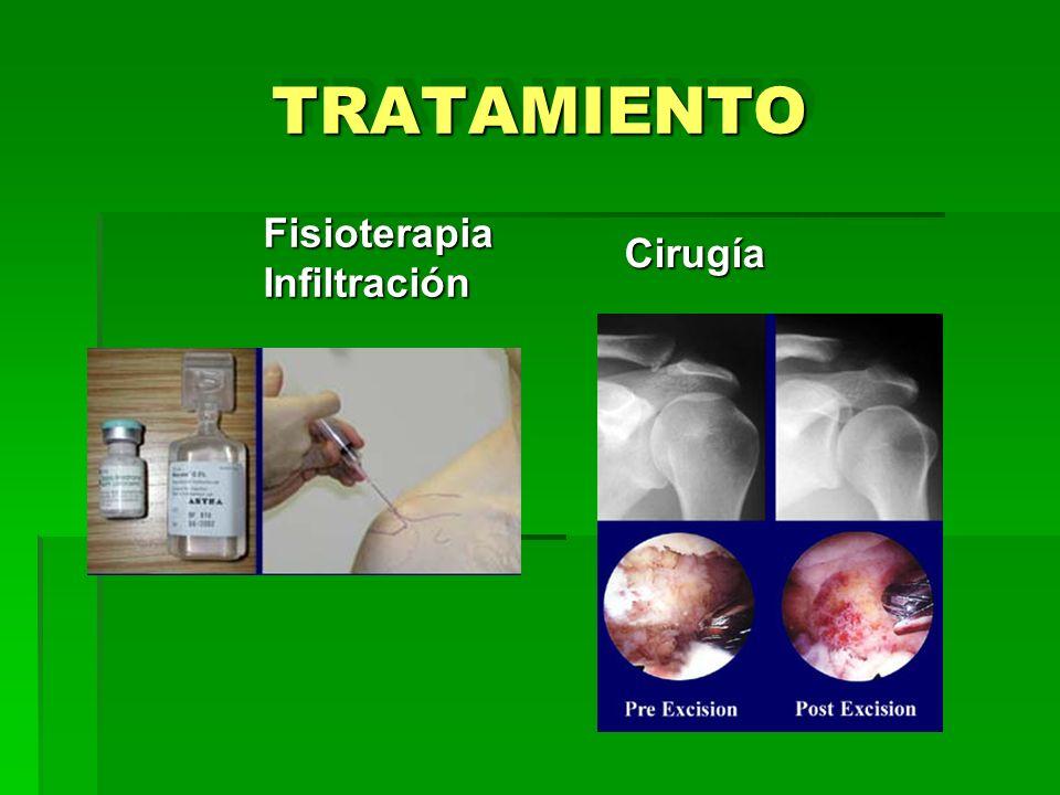 TRATAMIENTO Fisioterapia Infiltración Cirugía