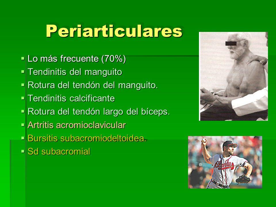 Periarticulares Lo más frecuente (70%) Tendinitis del manguito