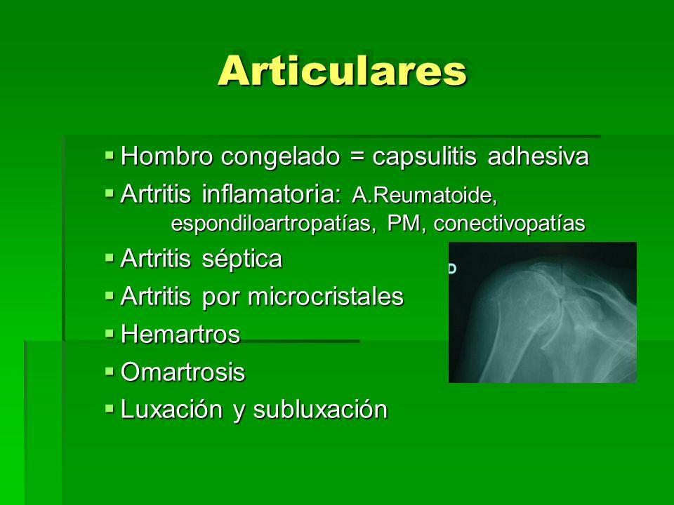 Articulares Hombro congelado = capsulitis adhesiva