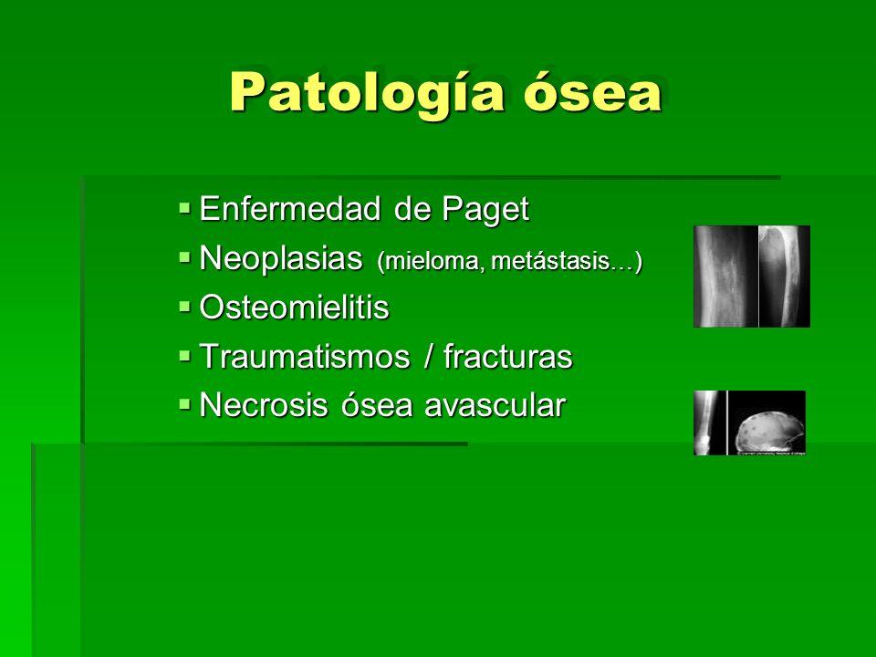 Patología ósea Enfermedad de Paget Neoplasias (mieloma, metástasis…)