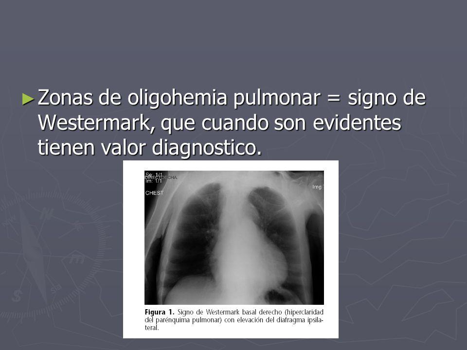 Zonas de oligohemia pulmonar = signo de Westermark, que cuando son evidentes tienen valor diagnostico.