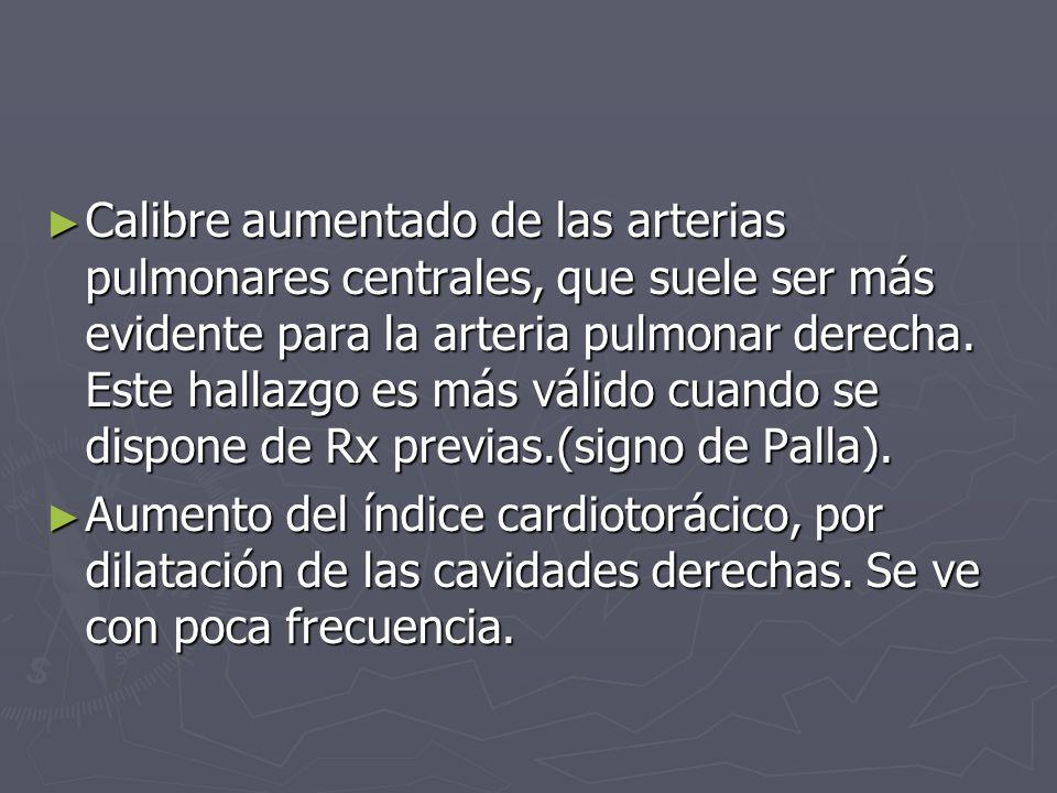 Calibre aumentado de las arterias pulmonares centrales, que suele ser más evidente para la arteria pulmonar derecha. Este hallazgo es más válido cuando se dispone de Rx previas.(signo de Palla).