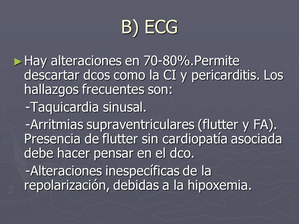 B) ECG Hay alteraciones en 70-80%.Permite descartar dcos como la CI y pericarditis. Los hallazgos frecuentes son: