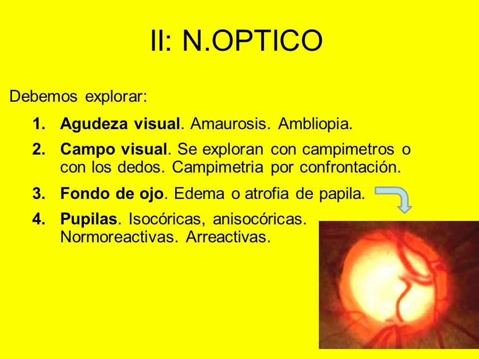 II: N.OPTICO Agudeza visual. Amaurosis. Ambliopia.