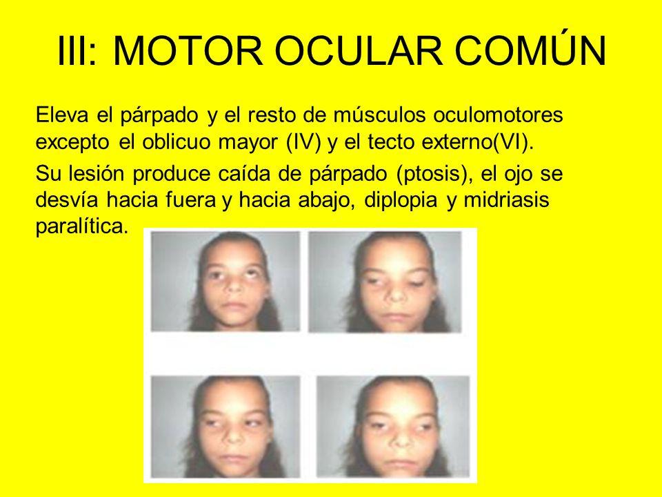 III: MOTOR OCULAR COMÚN