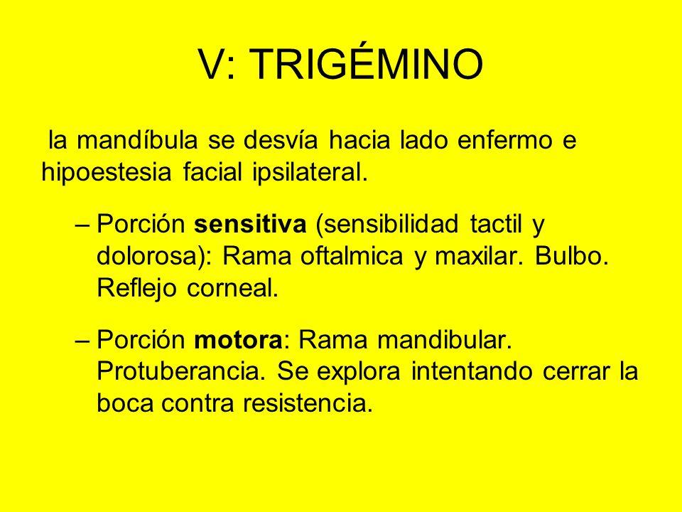 V: TRIGÉMINO la mandíbula se desvía hacia lado enfermo e hipoestesia facial ipsilateral.