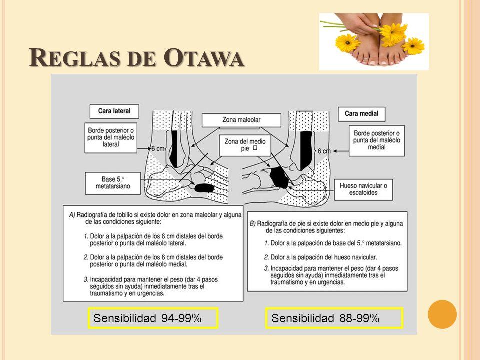 Reglas de Otawa Sensibilidad 94-99% Sensibilidad 88-99%