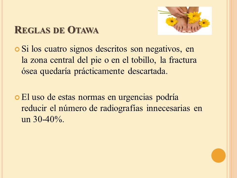 Reglas de Otawa