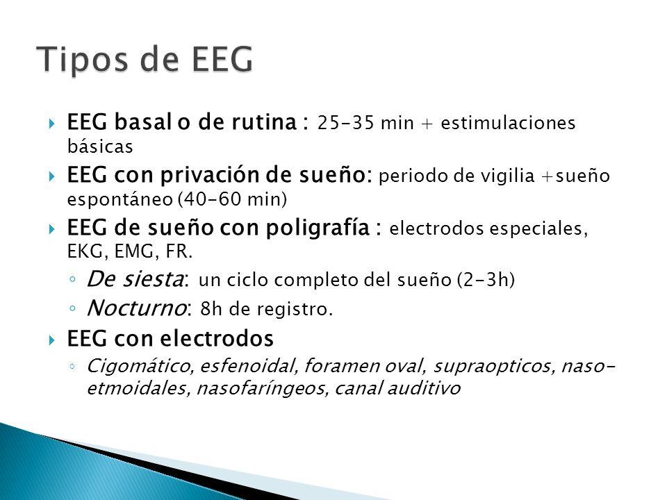 Tipos de EEG EEG basal o de rutina : 25-35 min + estimulaciones básicas.