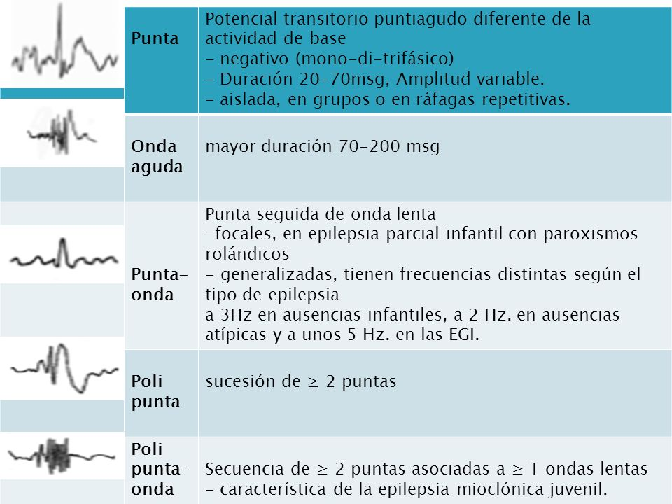 Punta Potencial transitorio puntiagudo diferente de la actividad de base. - negativo (mono-di-trifásico)