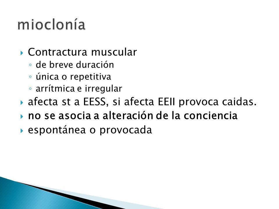 mioclonía Contractura muscular