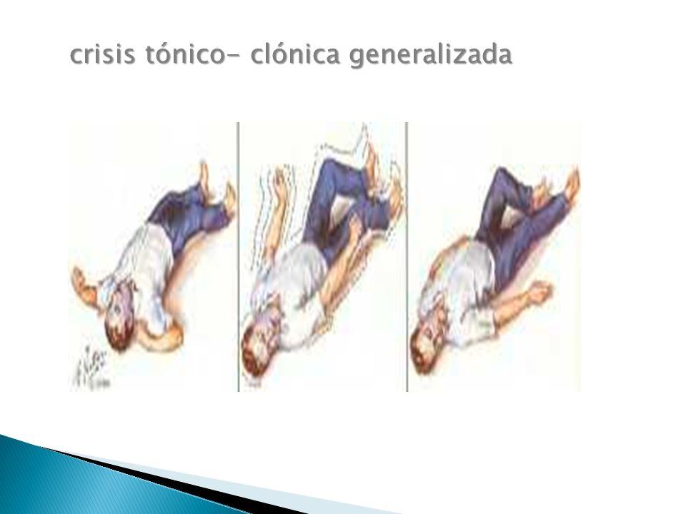 crisis tónico- clónica generalizada
