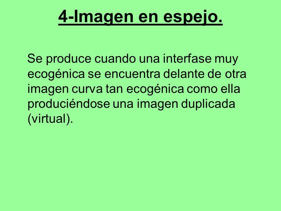 4-Imagen en espejo.