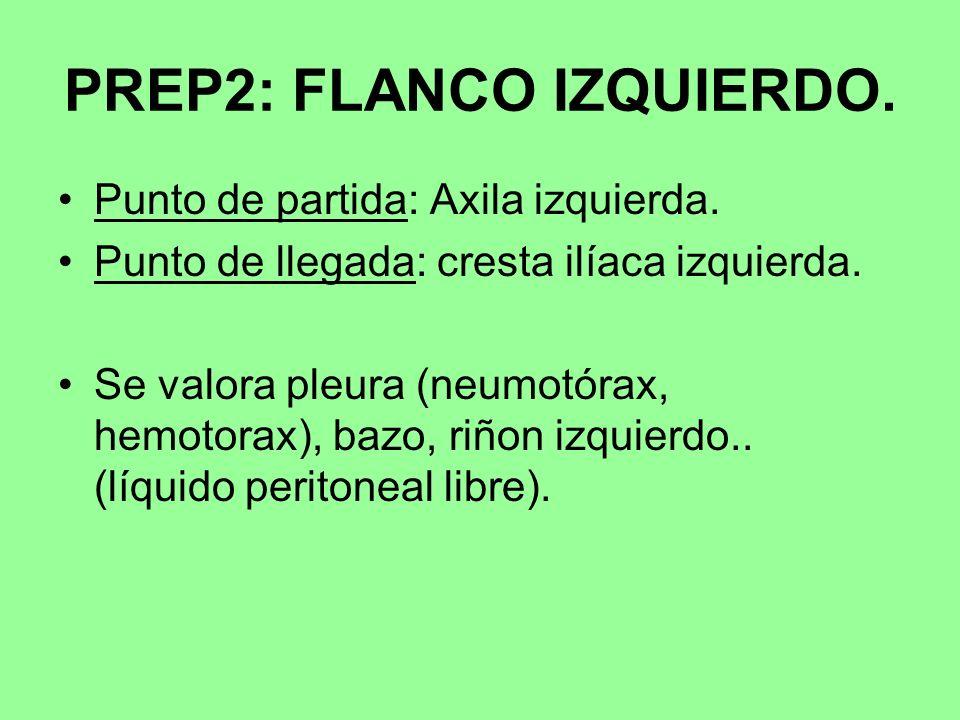 PREP2: FLANCO IZQUIERDO.