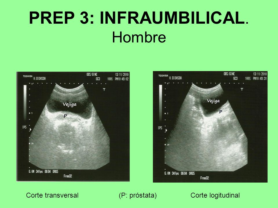 PREP 3: INFRAUMBILICAL. Hombre