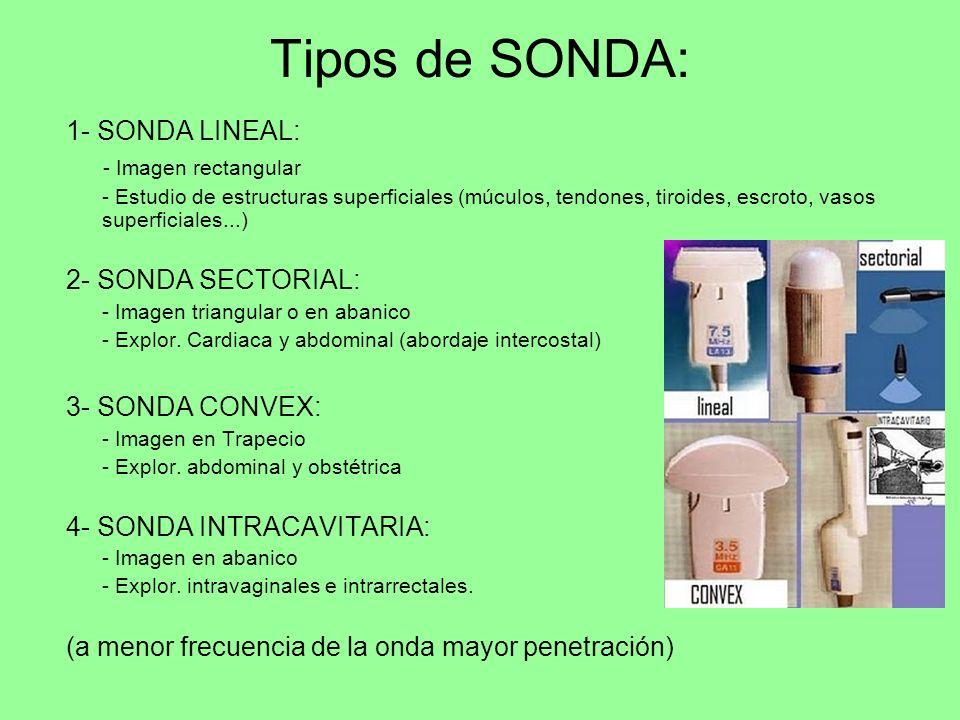 Tipos de SONDA: 1- SONDA LINEAL: - Imagen rectangular