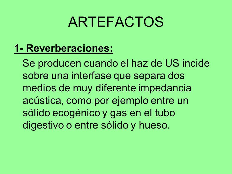 ARTEFACTOS 1- Reverberaciones: