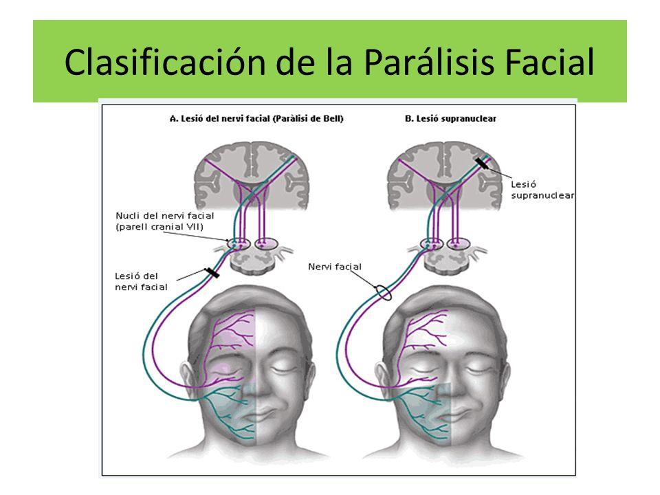 Clasificación de la Parálisis Facial