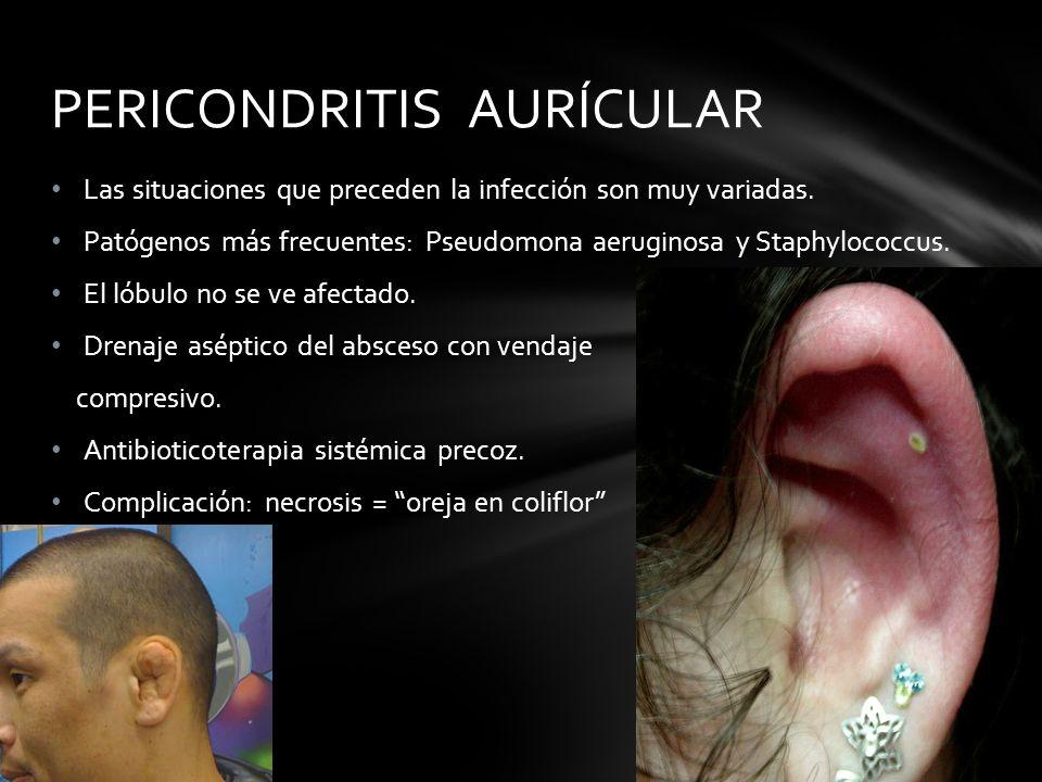 PERICONDRITIS AURÍCULAR