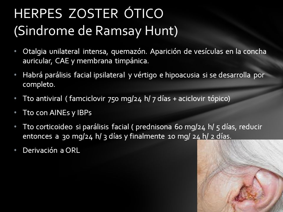 HERPES ZOSTER ÓTICO (Sindrome de Ramsay Hunt)