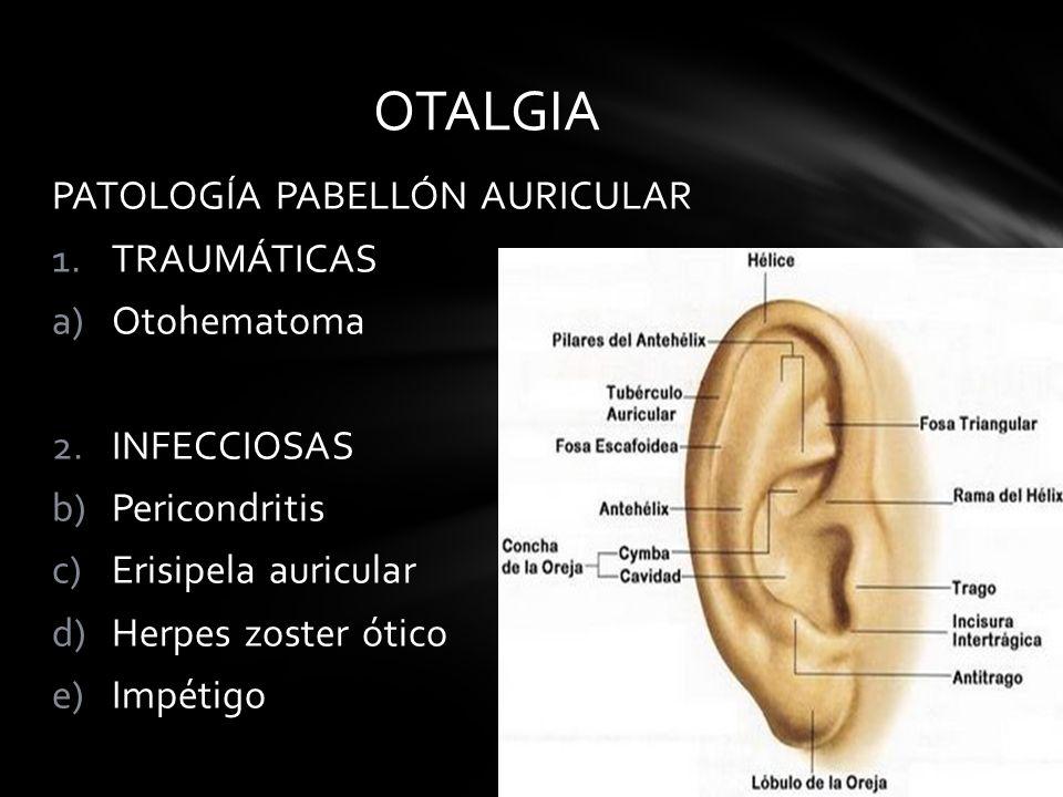 OTALGIA PATOLOGÍA PABELLÓN AURICULAR TRAUMÁTICAS Otohematoma