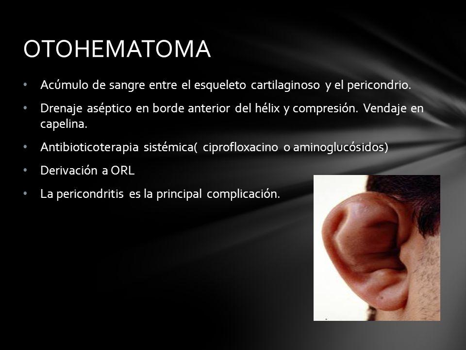 OTOHEMATOMA Acúmulo de sangre entre el esqueleto cartilaginoso y el pericondrio.