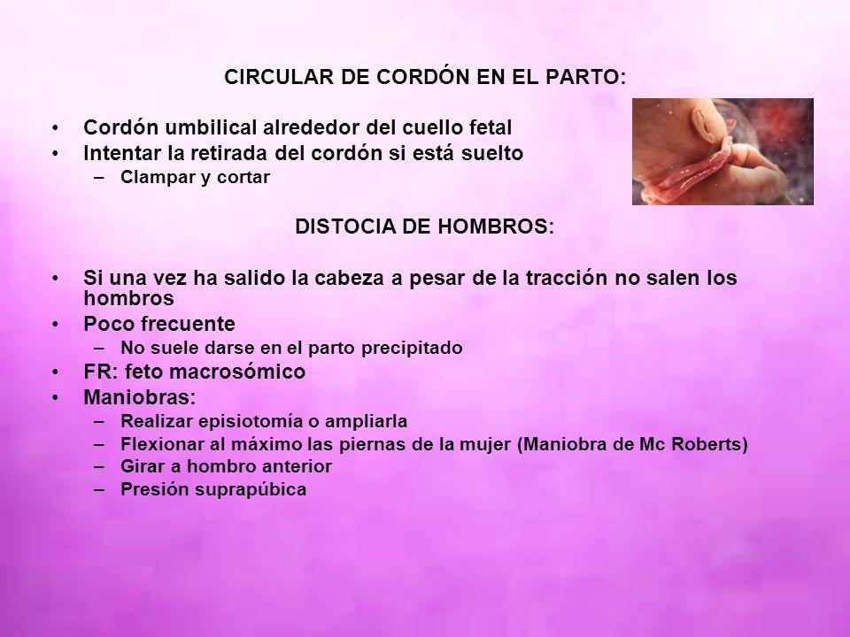CIRCULAR DE CORDÓN EN EL PARTO: