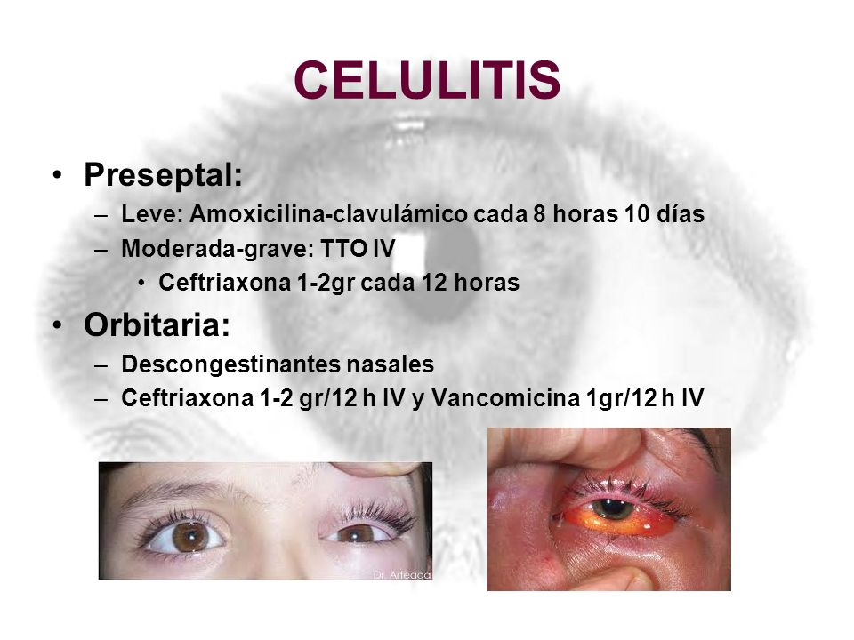 CELULITIS Preseptal: Orbitaria: