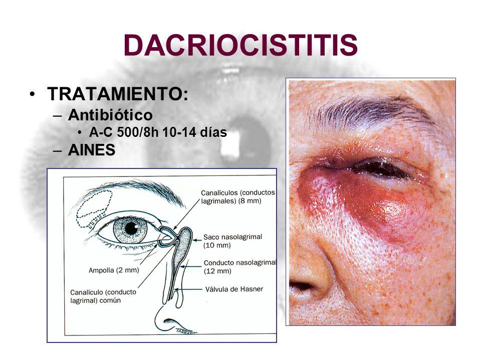 DACRIOCISTITIS TRATAMIENTO: Antibiótico A-C 500/8h 10-14 días AINES