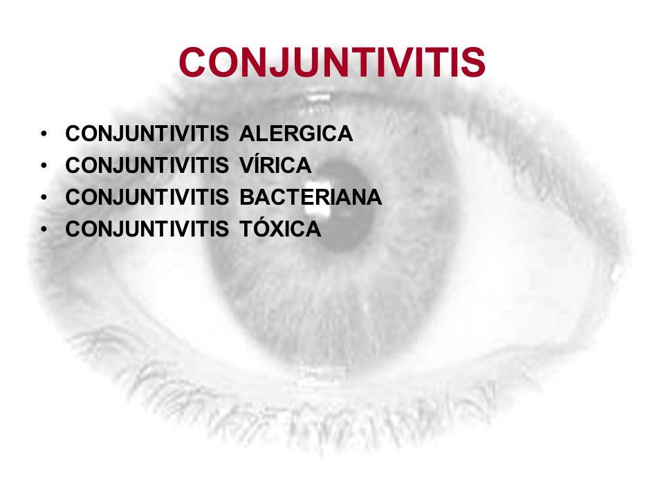 CONJUNTIVITIS CONJUNTIVITIS ALERGICA CONJUNTIVITIS VÍRICA