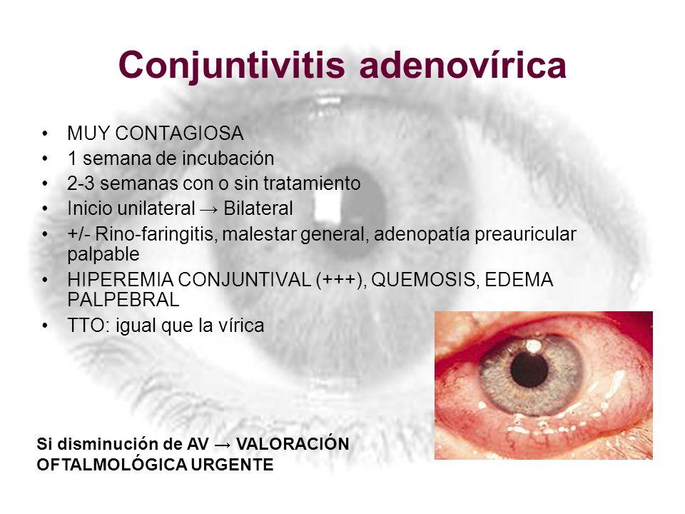 Conjuntivitis adenovírica