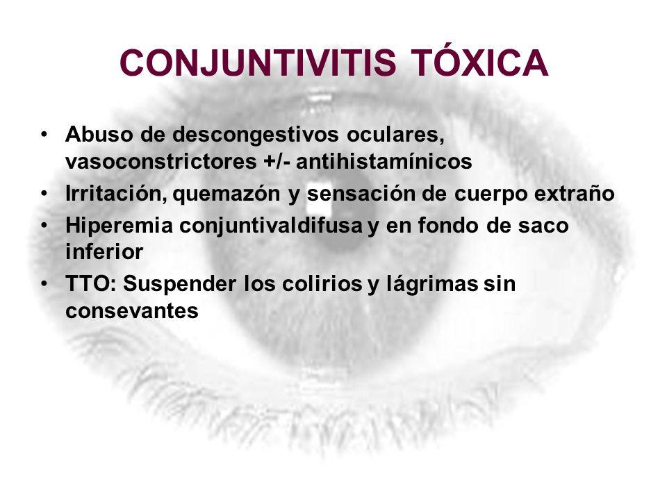 CONJUNTIVITIS TÓXICA Abuso de descongestivos oculares, vasoconstrictores +/- antihistamínicos. Irritación, quemazón y sensación de cuerpo extraño.