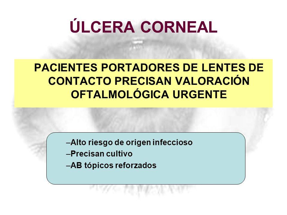 ÚLCERA CORNEAL PACIENTES PORTADORES DE LENTES DE CONTACTO PRECISAN VALORACIÓN OFTALMOLÓGICA URGENTE.