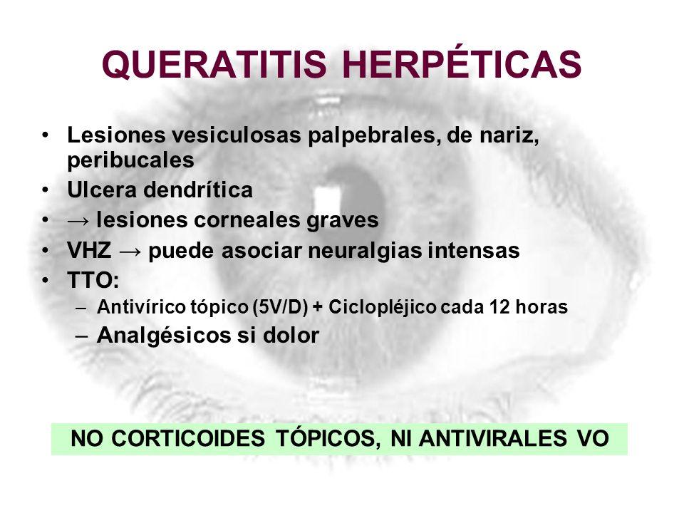 QUERATITIS HERPÉTICAS