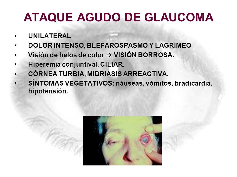 ATAQUE AGUDO DE GLAUCOMA