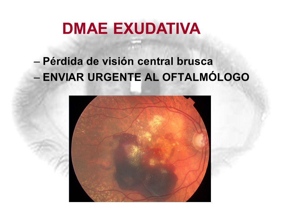 DMAE EXUDATIVA Pérdida de visión central brusca