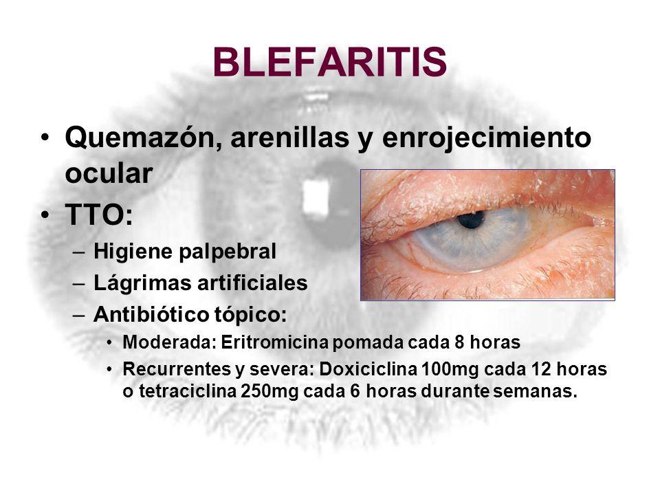 BLEFARITIS Quemazón, arenillas y enrojecimiento ocular TTO: