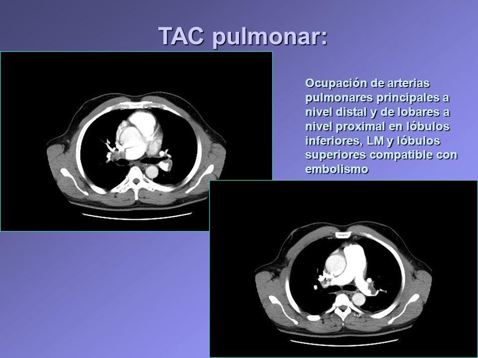 TAC pulmonar: