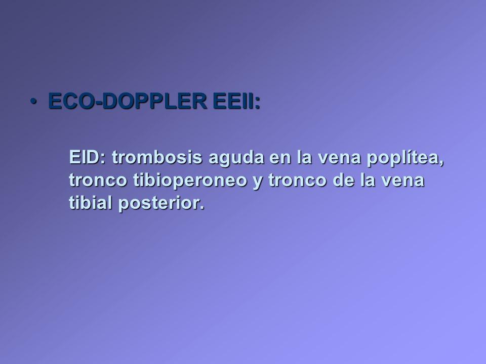 ECO-DOPPLER EEII: EID: trombosis aguda en la vena poplítea, tronco tibioperoneo y tronco de la vena tibial posterior.